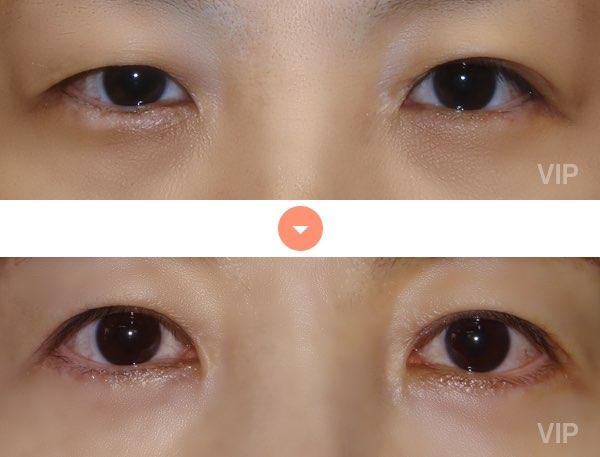 眼部 - 双眼皮手术