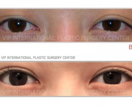 Non-incision double eyelid