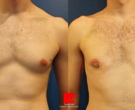 男性乳房手术
