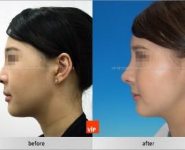 Harmony face rhinoplasty considering balance between forehea…