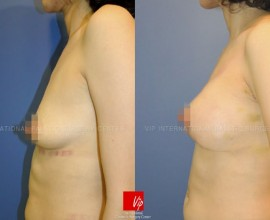 Tear drop breast augmentation