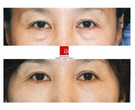 Lower eyelid blepharoplasty (eye bag removal)