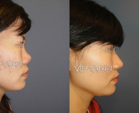 硅胶隆鼻手术修复 - 肋软骨隆鼻