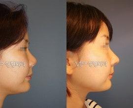 鼻部修复手术-肋软骨隆鼻
