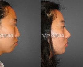 VIP和谐隆鼻术