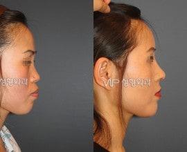 VIP 和谐隆鼻手术