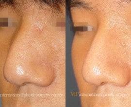 Wide nasal bone reduction rhinoplasty