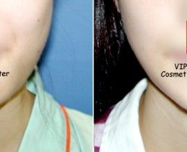 V-line jaw reduction ( T-Square surgery )