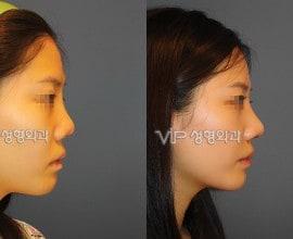 鼻部修复手术-鼻中隔隆鼻