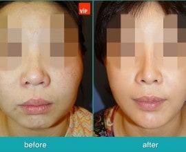Rib Cartilage Rhinoplasty, Face Contouring Surgery, V-line S…