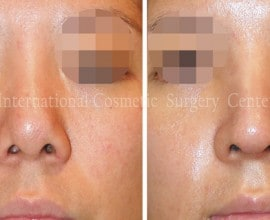 Remove foreign implant & autologous rhinoplasty