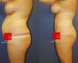 Abdominal surgery with liposuction