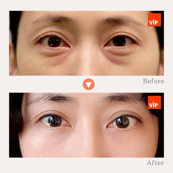 眼部 - 眼底脂肪重组