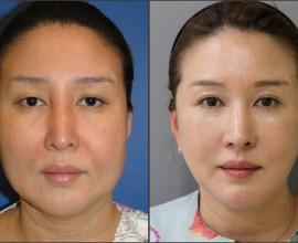 facelift , septal rhinoplasty