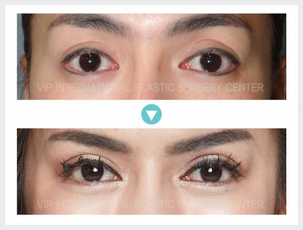 眼部 - 上睑下垂矫正术