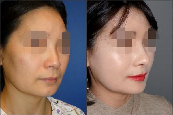Nose Surgery - Rib cartilage rhinoplasty
