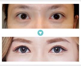 Eye correction