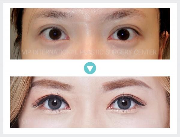 Eye Surgery - Eye correction