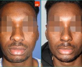 类软骨隆鼻, 内窥镜额头提升, 颏成形术