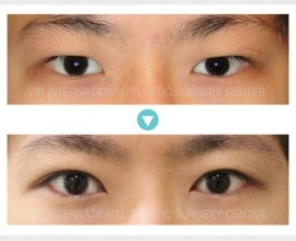 男性眼睑矫正