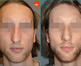 Septal cartilage rhinoplasty, Hump Nose