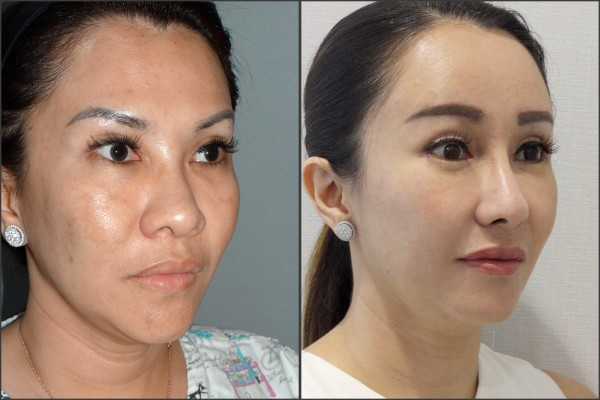 Nose Surgery, Eye Surgery, Face Lift, Stem Cell Fat Graft - Rib cartilage, Endoscopic Forehead, Fat graft, eye
