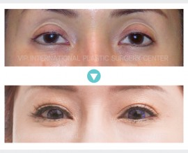 Ptosis Correction, Fat graft