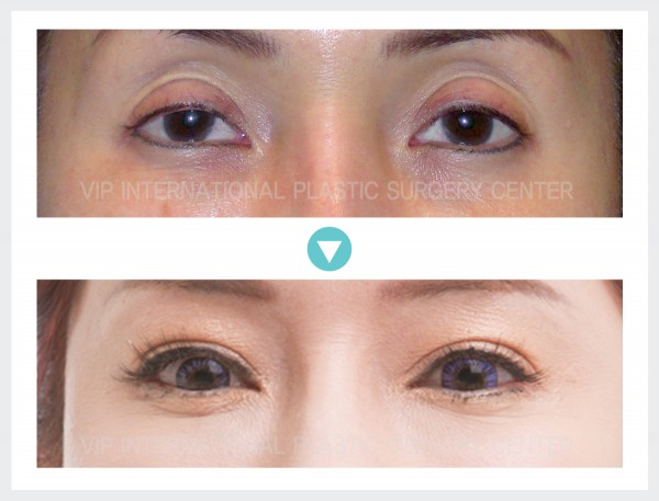 Eye Surgery, Stem Cell Fat Graft - Ptosis Correction, Fat graft