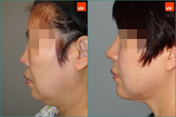 鼻部 - 肋软骨隆鼻