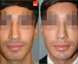 Septal cartilage rhinoplasty, Septal Deviation, Long Nose