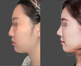 Septal rhinoplasty, Fat graft