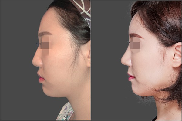 Nose Surgery, Stem Cell Fat Graft - Septal rhinoplasty, Fat graft