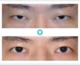 男性眼睑手术