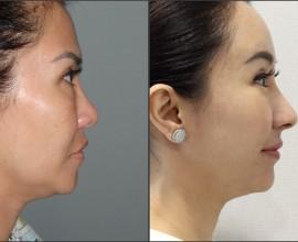 Rib cartilage, Endoscopic Forehead, Fat graft, eye