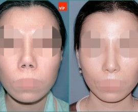 Contracted nose / Rib cartilage rhinoplasty