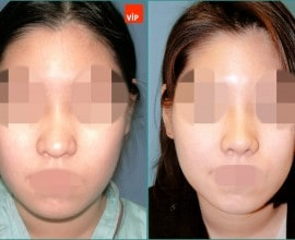 Septal cartilage rhinoplasty