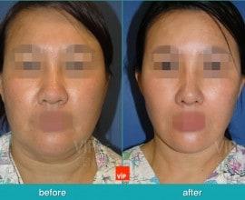 High SMAS 拉皮手术 / 颈部提升