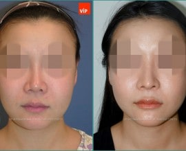 Rib cartilage rhinoplasty, Mid face augmentation
