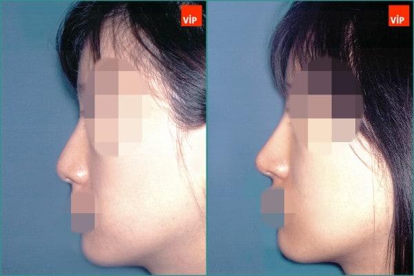 鼻部 - 鼻中隔软骨隆鼻