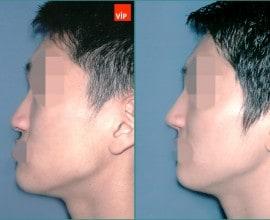 Rib cartilage rhinoplasty