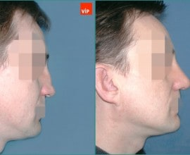 Hump Nose Septal cartilage rhinoplasty, Mid Face Augmentatio…
