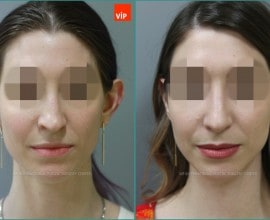 Septal cartilage rhinoplasty, Septal Deviation