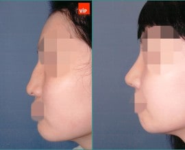 Hump Nose Septal cartilage rhinoplasty