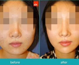 Face Contouring Surgery, V-line Jaw Reduction, Harmony Rhino…