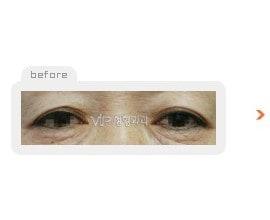 上& 下眼睑形成术