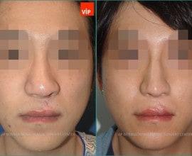 cleft lip nose surgery