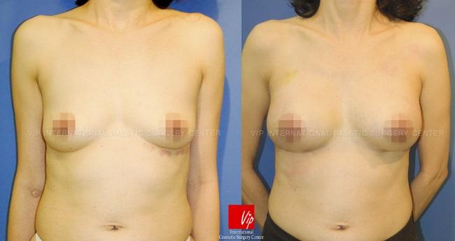 丰胸手术前后对比