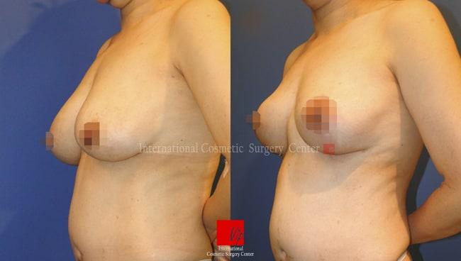 乳房提升手术前后对比