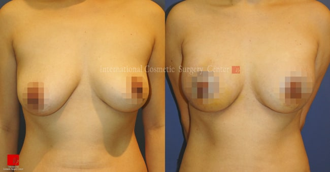 Breast Augmentation and Breast Lift Before and After