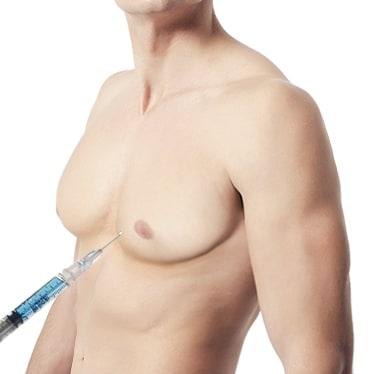 男性缩胸-吸脂法
